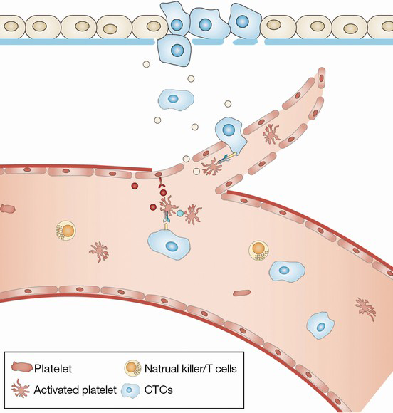 Interaction between circulating cancer cells and platelets: clinical